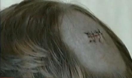 Σφαίρα στο κεφάλι για πέντε χρόνια